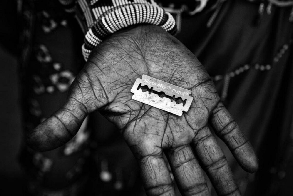 Κλειτοριδεκτομή: Ένα βήμα πιο κοντά στην αυστηροποίηση του νόμου στην Αίγυπτο – Αύξηση ποινών και αναστολή αδείας επαγγέλματος για τους γιατρούς